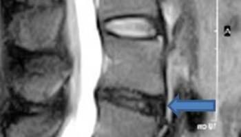Simetria corporală a probelor de disc cervical, EUR-Lex - D - EN - EUR-Lex